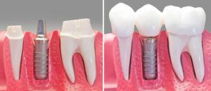 implantologia_2106a