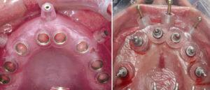 implantologia_32941