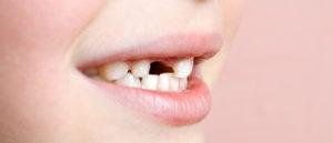 odontologia_infantil_28247