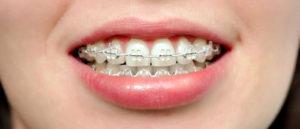 ortodoncia_25cd7